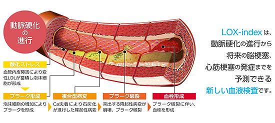 動脈硬化の進行
