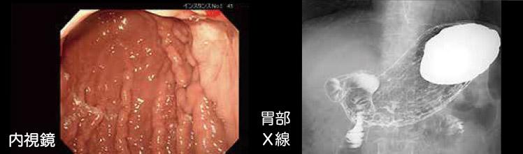 内視鏡検査・X線検査画像