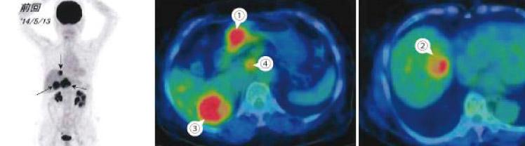 PET-CT検査画像