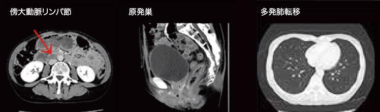 CT検査画像
